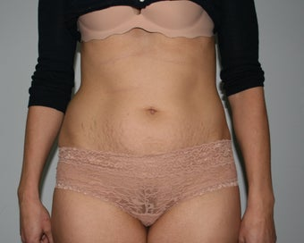Mini-Abdominoplasty before 644758
