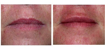 Lip Augmentation with Restylane before 69353