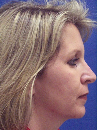 Chin Augmentation, Revision Rhinoplasty, and Facial Rejuvenation  before 250133