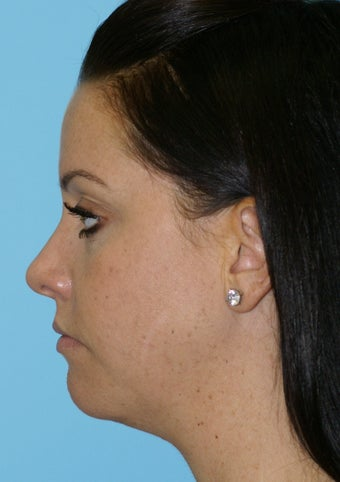 Chin Implant after 581194