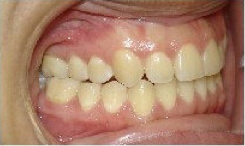 Invisalign Treatment after 359152