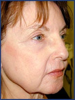 CO2 laser skin resurfacing after 87080