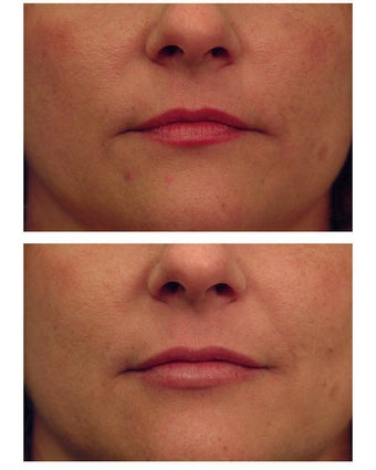 Injectable Filler before 301192