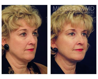 Lower Face and Neck Lift after 391669
