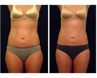 Liposuction before 397032