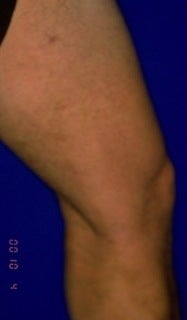 Sclerotherapy  after 370423