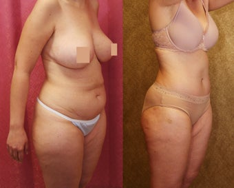 tummy tuck after 304702