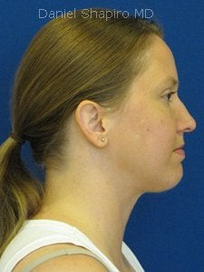 Chin implant Exchange for a more contemporary size medium chin implant and  Necklift with 15cc of VASER liposuction of the neck. after 250170