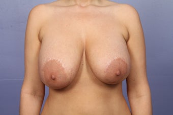 Explant of breast implants before 526806