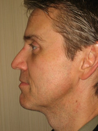 42 year old male before and after SmartLipo of the neck after 626272