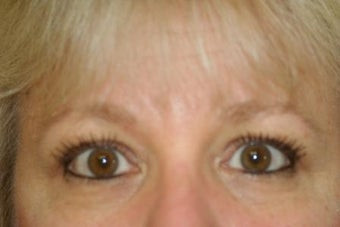 Lower Blepharoplasty after 551146