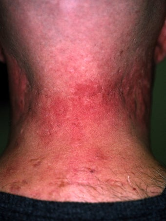 Acne Scarring before 417355