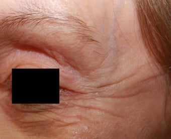 Crow's feet wrinkles before 508943