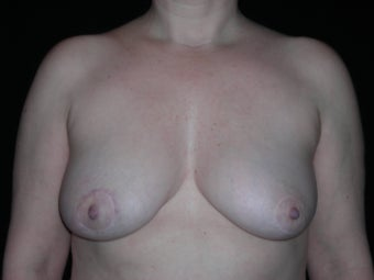 Breast implant removal after 275254