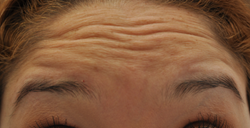 Botox to forehead and glabella before 426035