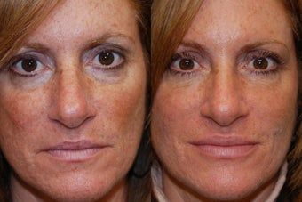 Liquid Face Lift, Non-Surgical Facial Rejuvenation before 134164