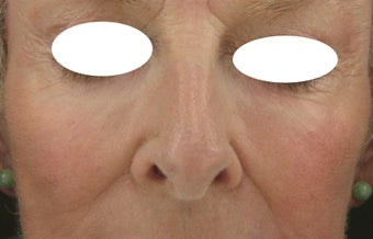 Midface, Cheeks, Tear troughs, and Nasolabial folds treated Restylane and Radiesse after 52828