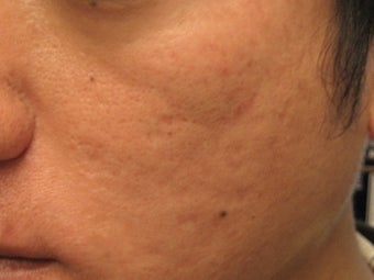 Artefill treatment of Acne Scars after 272000