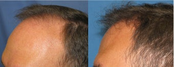 Hair Transplant before 223973