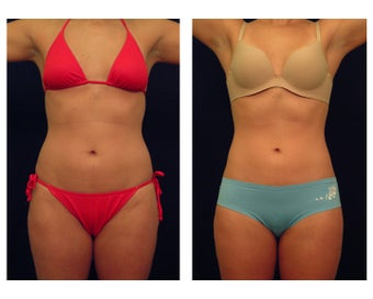 Liposuction before 286652