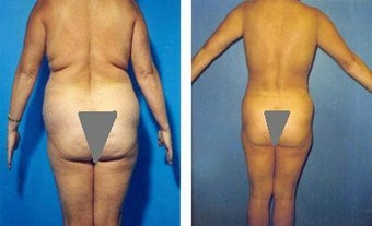 Liposuction of Back Rolls before 289516