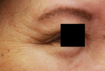 Crow's feet wrinkles before 508940