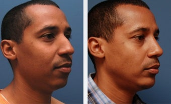 Rhinoplasty after 314275