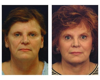 Lower Face and Neck Lift after 355094