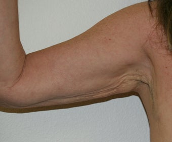 Arm lift (brachioplasty) before 548317