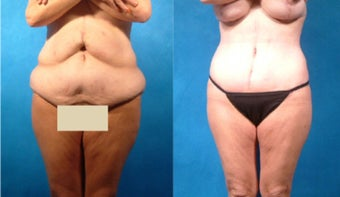 Lower Body Lift with Liposuction and Fat Transfer before 101862