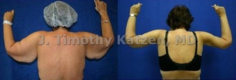 Before and after picture arm lift arm reduction after massive weight loss gastric bypass female before 644250