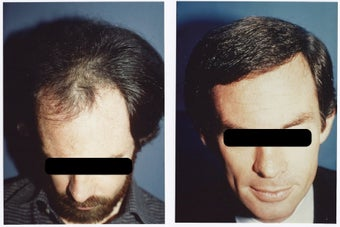 Hair Transplant before 369160