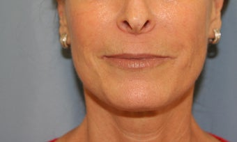 Juvederm injection after 343529