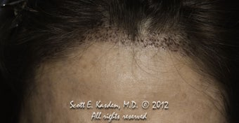 AccuGraft Hair Transplant after 589692