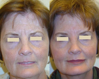 Botox and Restylane before 96275
