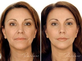 Restylane Full Face Treatment before 6276