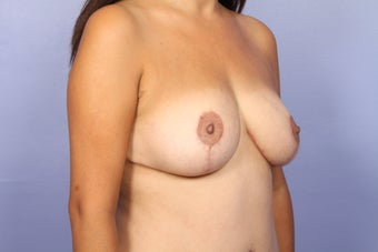 Breast Augmentation after 467216