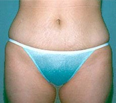 Smartlipo after 401651