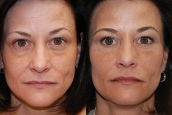Non-surgical facial rejuvenation with Silikon-1000 and Botox. before 500581