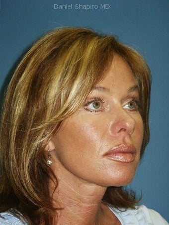 Facelift, Endoscopic Browlift, Upper and Lower Blepharoplasty after 248938
