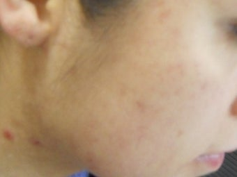 Severe Acne - Photodynamic Treatment after 271950