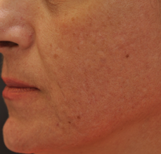 Acne Scarring after 426032