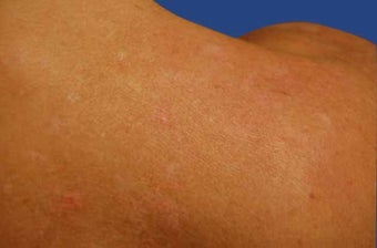 Fraxel Acne Scarring Treatment after 513436