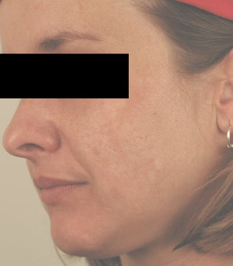 Laser Acne Scar Removal after 82946