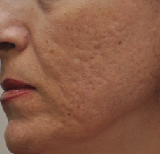 Acne Scarring before 426032