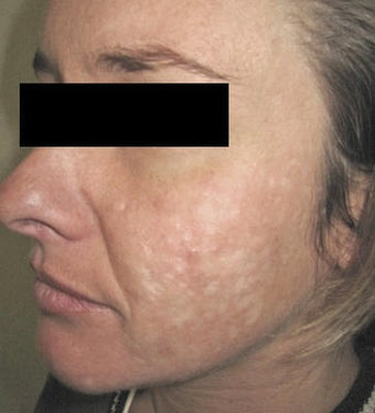 Laser Acne Scar Removal before 82946