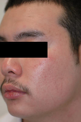 Laser Acne Treatment after 82941