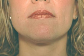Laser Acne Treatment after 82958