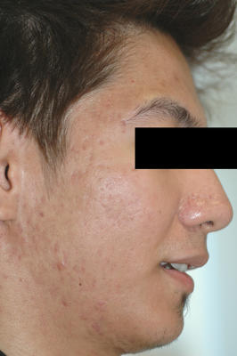 Laser Acne Treatment after 82962