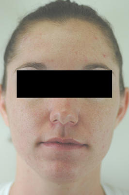 Laser Acne Treatment after 82976